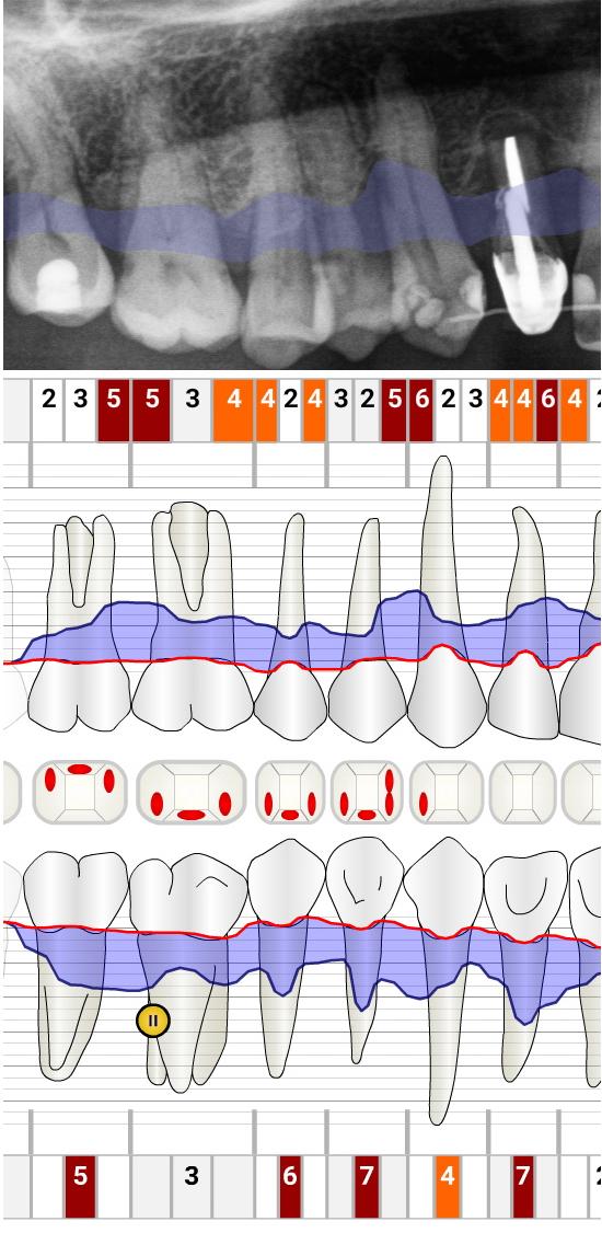 Befund Parodontitis